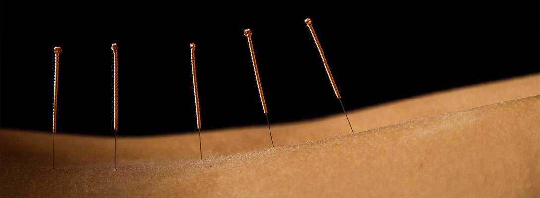 鍼灸治療の作用の仕組み